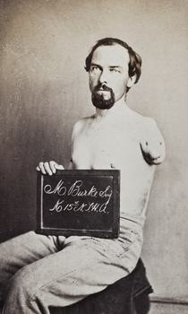 Sgt. Martin Burke, Co K 15 NY Heavy Artillery, Wounded at Petersburg, June 25, 1864.