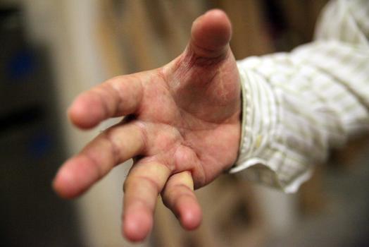 Kostas Pylarinos' hand.