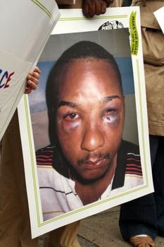 Photograph of Gamalier Reyes' facial injuries