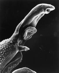 https://media2.wnyc.org/i/200/0/c/80/photologue/photos/Parasite_Schistosome_SEM.jpg