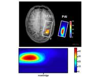 FMRI lie detector