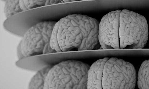 Brains on a shelf
