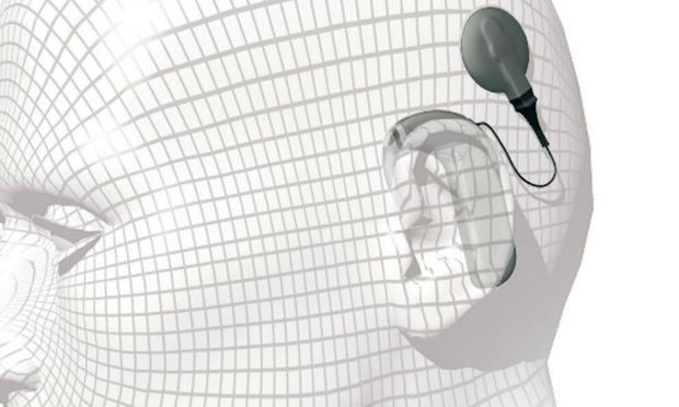 Cochlear Implant Soundcheck
