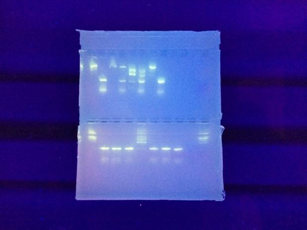 In another exercise, Wetherell experimented with her own DNA. After amplifying the  DNA samples in a polymerase chain reaction machine (Slide 2), Wetherell pipetted them into an agarose gel (above).
