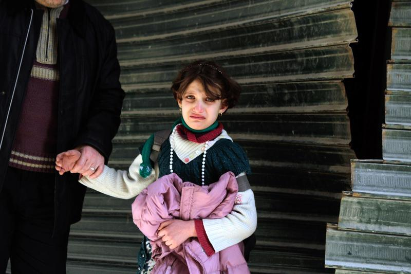 A Syrian girl cries following an explosion in the northern city of Aleppo, on February 20, 2013.