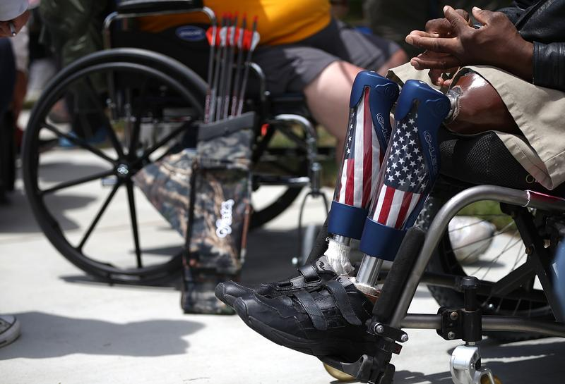 A disabled veteran with prosthetic legs looks on during the archery competition at the inaugural Valor Games Far West on June 11, 2013 in Foster City, California.
