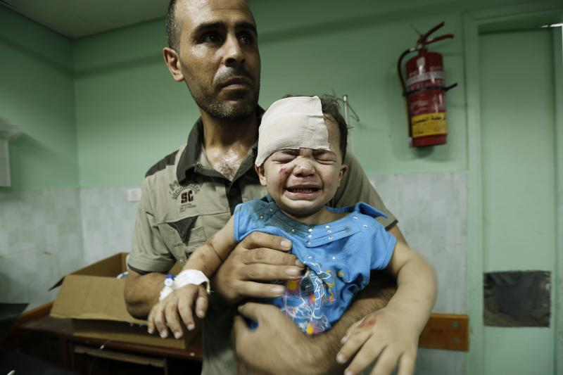 A Palestinian child, wounded in an Israeli strike on a compound housing a UN school in Jabalia refugee camp in the northern Gaza Strip, receives treatment at Kamal Adwan hospital on July 30, 2014.