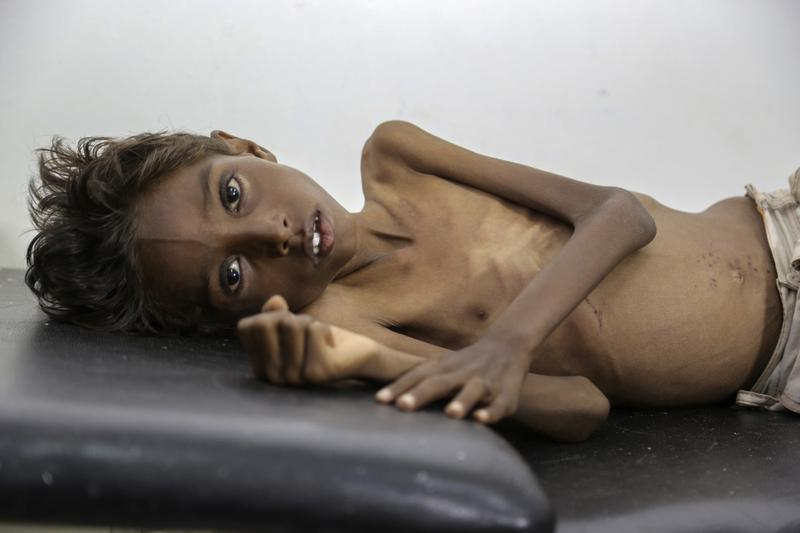In this December 12, 2016 photo, provided by UNICEF, five-year-old Mohannad Ali lies on a hospital bed in Abs, Yemen.
