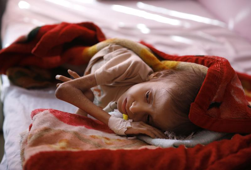 Jan. 24, 2016: A malnourished child lies in a bed waiting to receive treatment at a therapeutic feeding center in a hospital in Sanaa, Yemen.