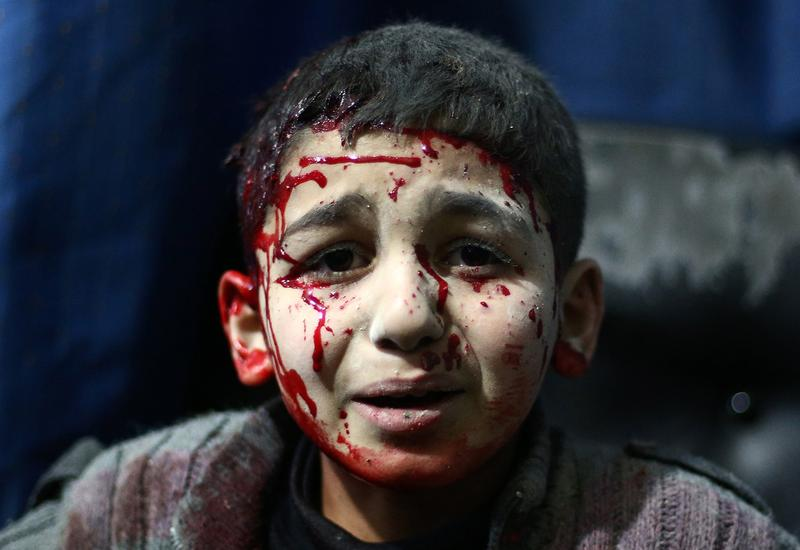 An injured Syrian child waits for treatment at a makeshift hospital north east of the capital Damascus, following reported air strikes by forces loyal to President Assad. Feb. 15, 2015