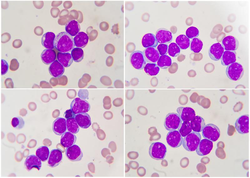 Leukemia , human blood cell under microscope. Emerging research on acute myelogenous leukemia shows promise.