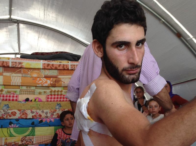 Abbas Soullo, a Yazidi man, shows his bullet wounds at a camp for the displaced in northern Iraq, near the Syrian border. He says he is the only survivor of 58 Yazidi men who were rounded up and shot on Aug. 3 in the town of Jazira.