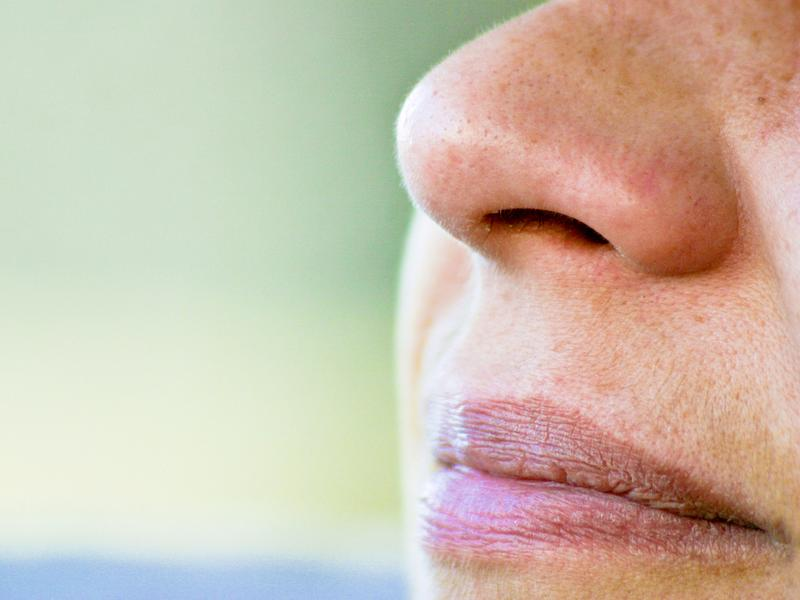 Want to find your personal posse of <em>Demodex</em> mites? Gently scrape the pores on the sides of your nose.