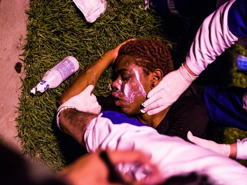 A protester receives medical attention after tear gas was used during a demonstration in Rio de Janeiro on Aug. 5.