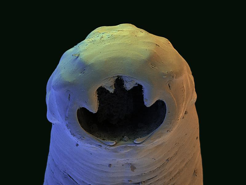The Old World hookworm is an intestinal parasite. The image above was taken by a scanning electron micrograph and was color-enhanced. The worm's actual size ranges from 0.03 inches to 0.3 inches.