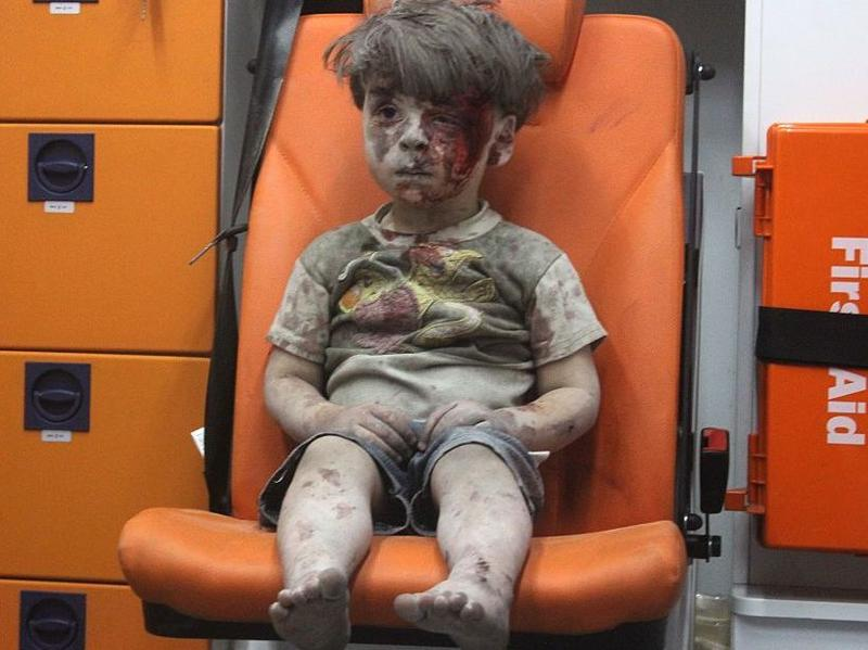 Omran Daqneesh sits in the back of an ambulance after he was injured during air strikes in Aleppo.
