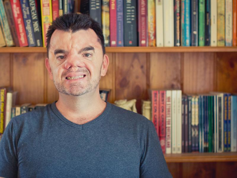A writer by profession, Robert Hoge was the first member of his family to go to college.