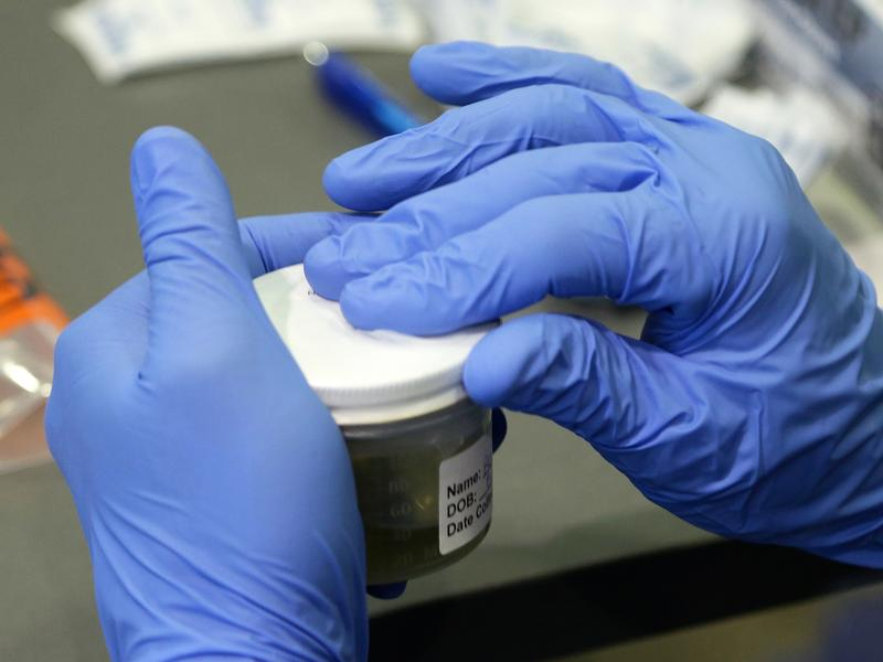 A Florida Department of Health employee processes a urine sample to test for the Zika virus on Sept. 14 in Miami Beach.