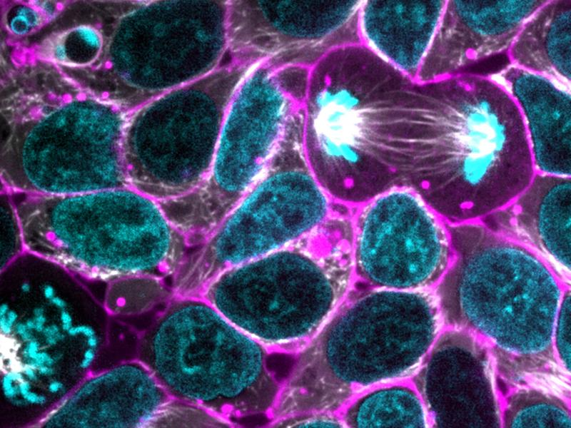 In a cluster of glowing human stem cells, one cell divides. The cell membrane is shown in purple, while DNA in the dividing nucleus is blue. The white fibers linking the nucleus are spindles, which aid in cell division.