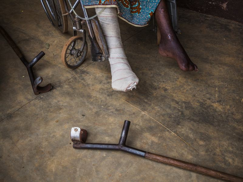 A man at a hospital in Bombuaka, Togo.