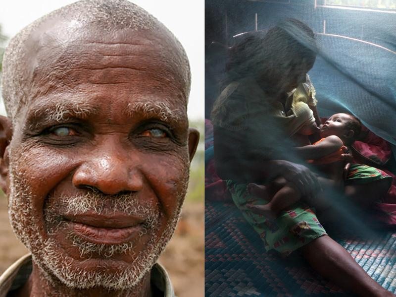From left: Emmanuel Kwame lost his sight to river blindness as a young man in Ghana; a bed net keeps mosquitoes away from a mother and child in a Somalian hospital; extracting a guinea worm from an infected person.