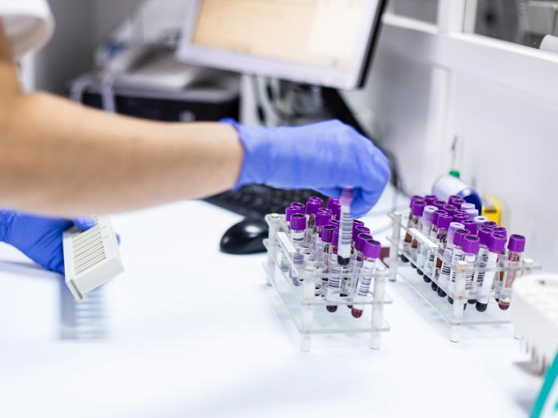 The hemoglobin A1C test for blood sugar, a standard assay for diabetes, may not perform as well in people with sickle cell trait, a study finds.