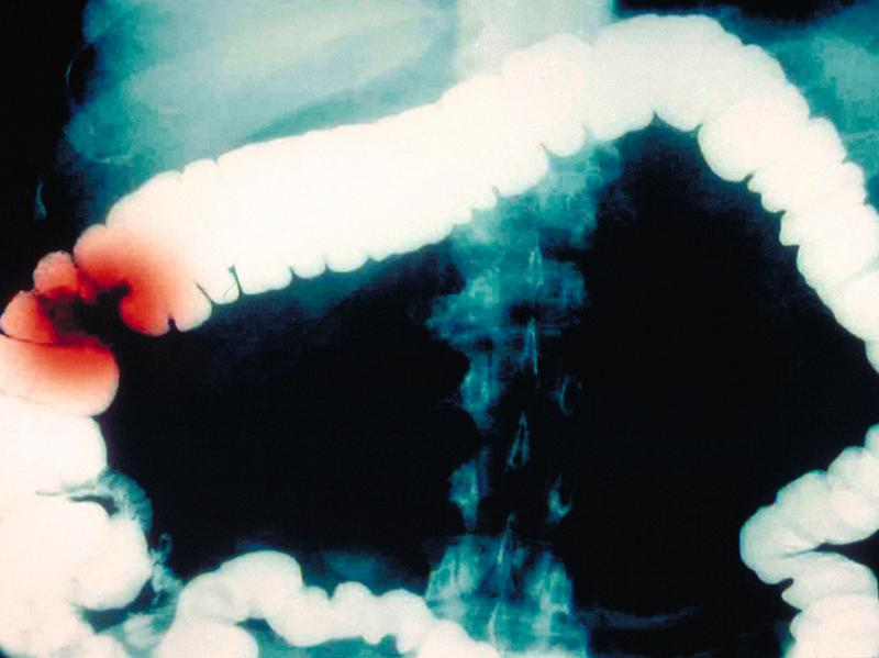 This computer-enhanced barium contrast X-ray shows colon cancer in red. Researchers have been trying to figure out what looks to be a decade-long rise in colon cancer among people younger than 50.