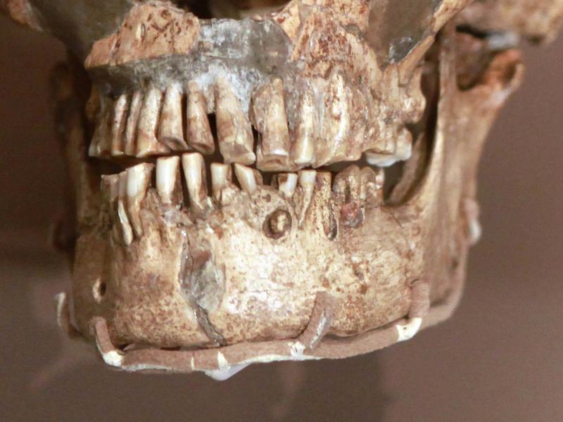 The skull of La Ferrassie Neanderthal, from France.