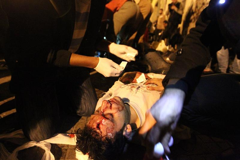 A wounded Egyptian anti-government demonstrator receives treatment on a pavement at Cairo's Tahrir Square on February 2, 2011.
