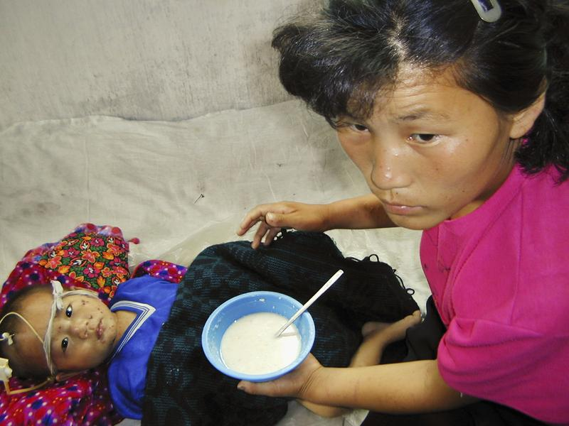 In this handout from the World Food Programme, a malnourished North Korean boy is fed a vitamin and mineral-enriched porridge. August 4, 2004 in South Pyongyang province, North Korea.