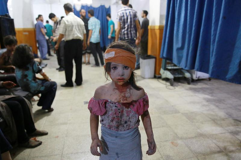 A wounded Syrian girl looks on at a make shift hospital in the rebel-held area of Douma, east of the capital Damascus, following shelling and air raids by Syrian government forces on August 22, 2015.