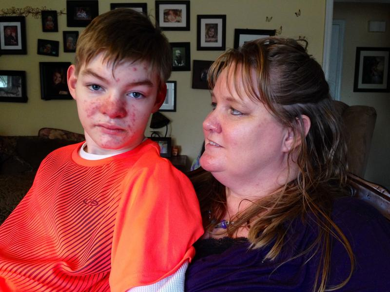 After starting on medical marijuana, Jackson Stormes, 14, has gone from having up to 20 seizures a day to having one every couple weeks.