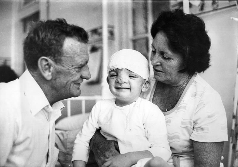 Doctors removed a large tumor from Robert Hoge's face when he was a baby, but the removal distorted his features.